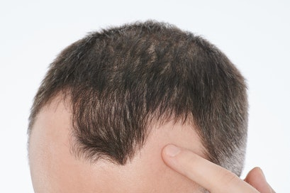 Could nutrient deficiencies lead to hair loss?
